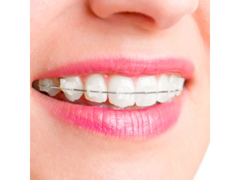 Different Types Of Dental Braces Roseville Ca Patch