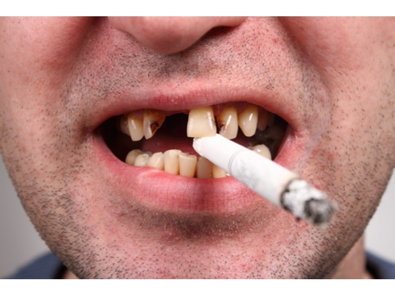 effect of cigarette smoking Cigarette smoking is a major cause of illness and death this article reviews both the magnitude of the disease burden from cigarette smoking worldwide and strategies to limit smoking.