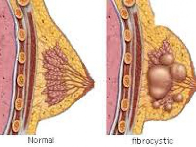 get healthy breasts naturally: new therapy minimizes fibrocystic, Skeleton