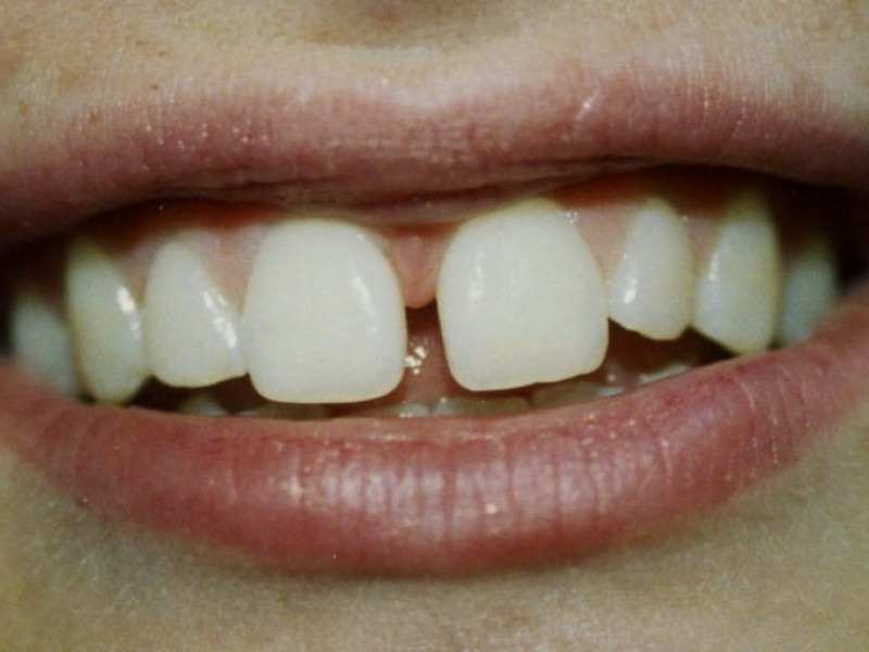 Why Do Teeth Grow Gaps Silver Spring Md Patch