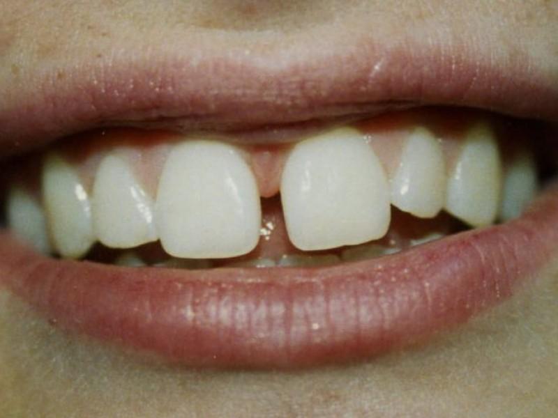 how to make small teeth bigger