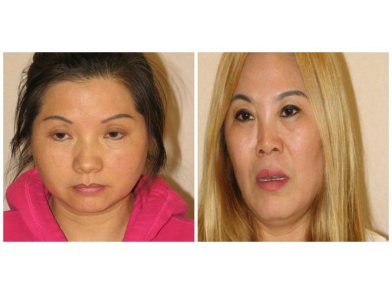 Arrestationer Made In Prostitution Sting Hos Orland Park Massage-9891